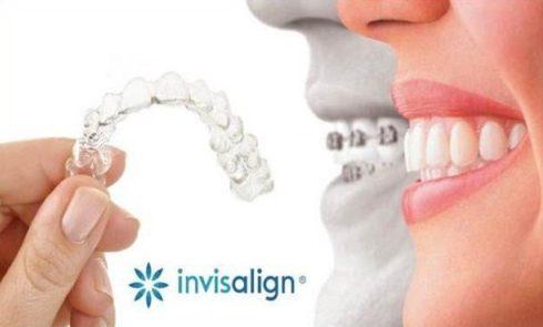 Niềng răng Invisalign trong bao lâu thời gian 1