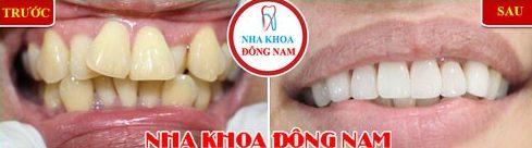 Niềng răng Invisalign trong bao lâu thời gian 10
