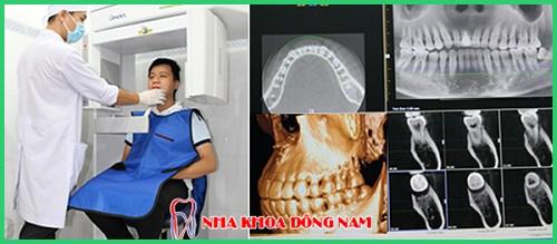 Niềng răng Invisalign trong bao lâu thời gian 15