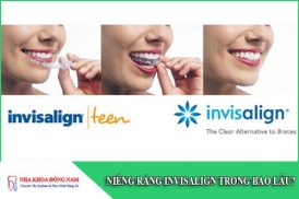 niềng răng invisalign trong bao lâu