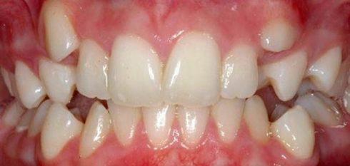 Niềng răng Invisalign trong bao lâu thời gian 3