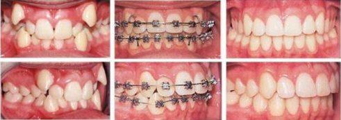 Niềng răng Invisalign trong bao lâu thời gian 5