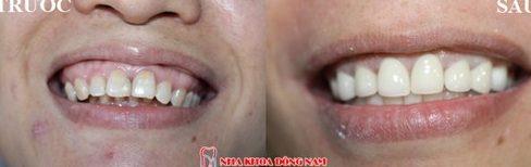 Niềng răng Invisalign trong bao lâu thời gian 6