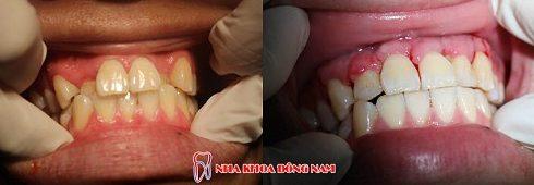 Niềng răng Invisalign trong bao lâu thời gian 7