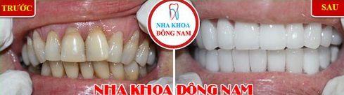 Niềng răng Invisalign trong bao lâu thời gian 8