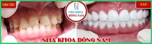 Niềng răng Invisalign trong bao lâu thời gian 9