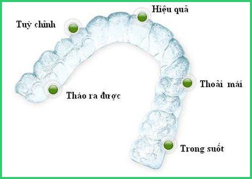 Niềng răng trong suốt đột phá mới trị hô vẩu 12