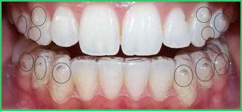 Niềng răng trong suốt đột phá mới trị hô vẩu 13