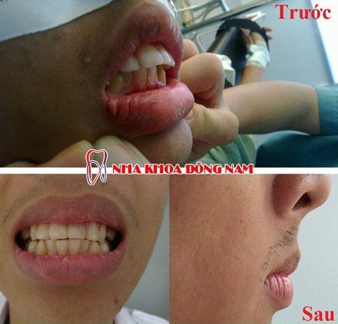 Niềng răng trong suốt đột phá mới trị hô vẩu 18