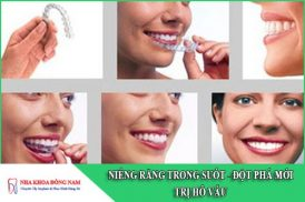 niềng răng trong suốt - giải pháp đột phá điều trị hô vẩu