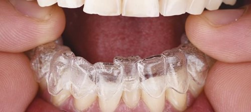 Niềng răng trong suốt Invisalign 6