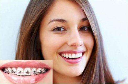 Niềng răng trong suốt có mắt không 1