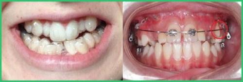 Niềng răng trong suốt có mắt không 3