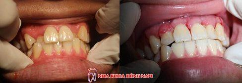 Niềng răng trong suốt có mắt không 4