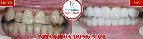 Niềng răng trong suốt có mắt không 5Niềng răng trong suốt có mắt không 5