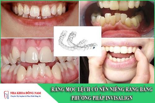 răng mọc lệch có nên niềng răng bằng phương pháp invisalign