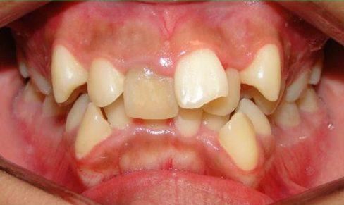 Răng mọc lệch có cần niềng răng bằng phương pháp Invisalign không 2