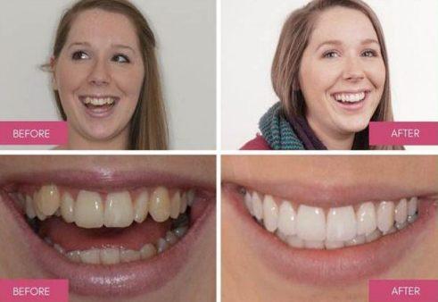 Răng mọc lệch có cần niềng răng bằng phương pháp Invisalign không 3