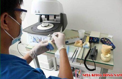 Răng mọc lệch có cần niềng răng bằng phương pháp Invisalign không 6