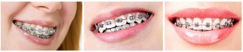 Răng mọc lệch có cần niềng răng bằng phương pháp Invisalign không 9