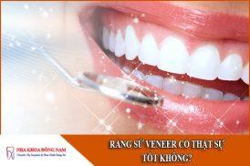 Răng Sứ Veneer Có Thật Sự Tốt Không?