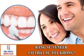Răng sứ Veneer có thật sự tốt không