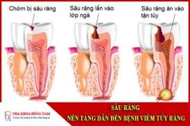 Sâu răng nền tảng của bệnh viêm tủy