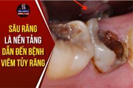 Sâu Răng Là Nền Tảng Dẫn Đến Bệnh Viêm Tủy Răng