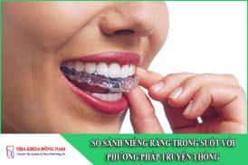 so sánh niềng răng trong suốt với phương pháp truyền thống