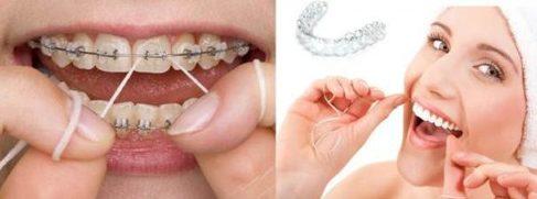 So sánh niềng răng trong xuốt với niềng răng truyền thống 3