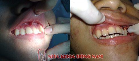 So sánh niềng răng trong xuốt với niềng răng truyền thống 4