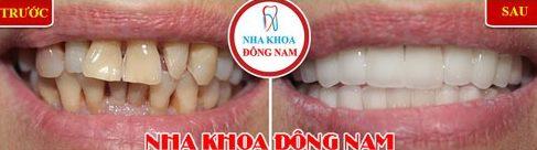So sánh niềng răng trong xuốt với niềng răng truyền thống 6