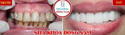 So sánh niềng răng trong xuốt với niềng răng truyền thống 7