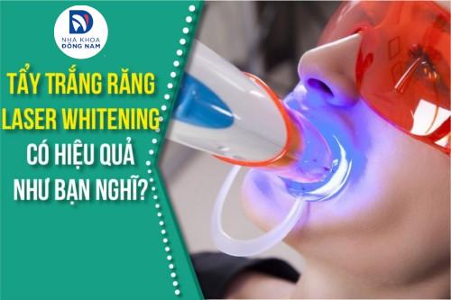 Tẩy Trắng Răng Laser Whitening có hiệu quả như bạn nghĩ