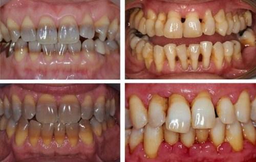Tẩy trắng răng laser whitening mang lại hiệu quả tức thì không 1