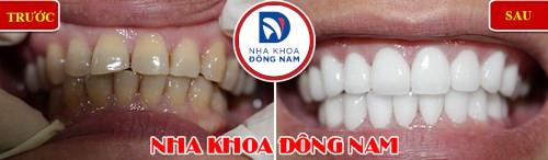 Tẩy trắng răng laser whitening mang lại hiệu quả tức thì không 11