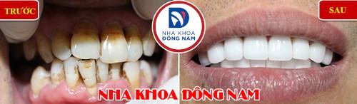 Tẩy trắng răng laser whitening mang lại hiệu quả tức thì không 14