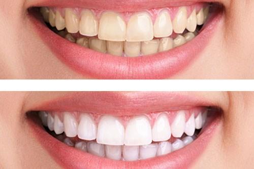 Tẩy trắng răng laser whitening mang lại hiệu quả tức thì không 2