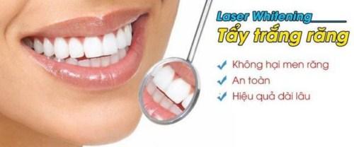 Tẩy trắng răng laser whitening mang lại hiệu quả tức thì không 3