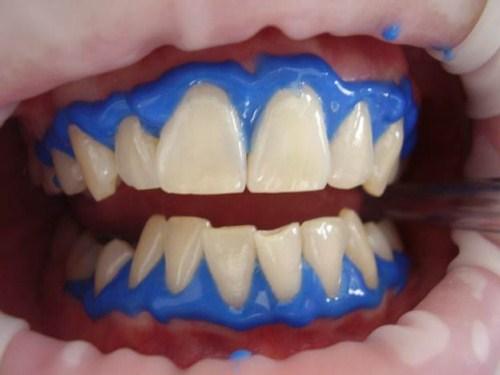 Tẩy trắng răng laser whitening mang lại hiệu quả tức thì không 5