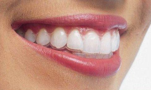 Thời gian niềng răng trong suốt có nhanh không1