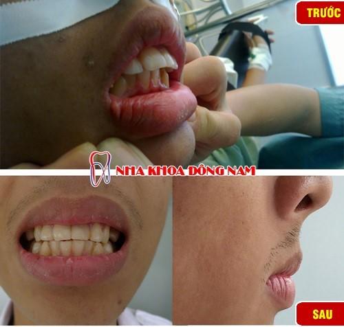 thời gian niềng răng trong suốt có nhanh không 4