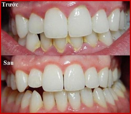 thuốc lá và những tác hại đến răng miệng của chúng ta 2
