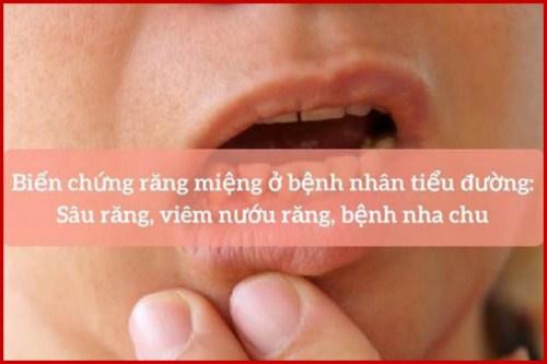 tiểu đường và sự ảnh hưởng đến răng miệng 1