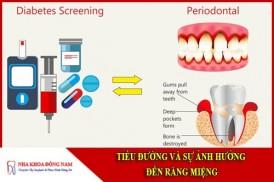 tiểu đường và sự ảnh hưởng đến răng miệng