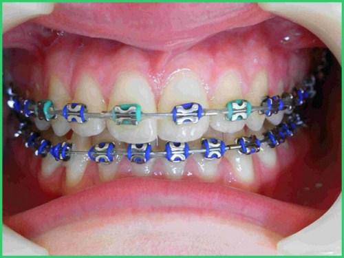 Ưu nhược điểm các phương pháp niềng răng 1