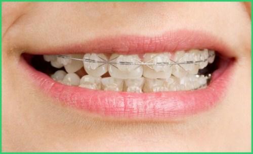 Ưu nhược điểm các phương pháp niềng răng 2