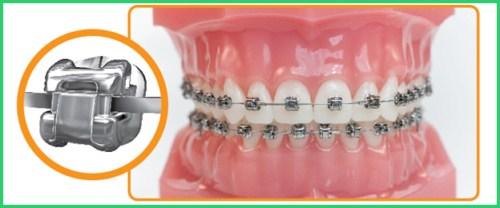 Ưu nhược điểm các phương pháp niềng răng 3