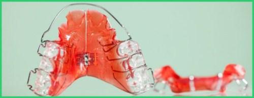 Ưu nhược điểm các phương pháp niềng răng 6