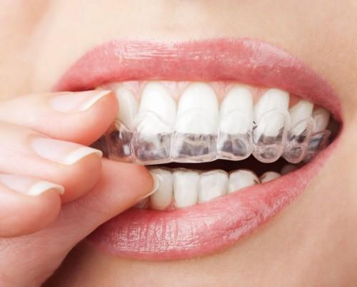 niềng răng mắc cài trong suốt